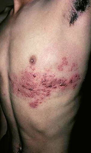 Herpes Angina | Herpes Protocol
